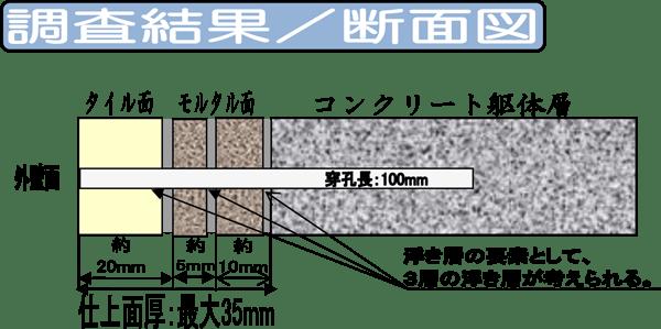 FST工法内視鏡検査